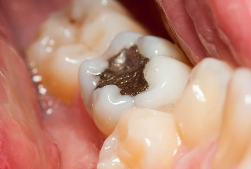 Bei einer schonenden Amalgamsanierung wird die Amalgamversorgung durch verträglichere Werkstoffe ersetzt