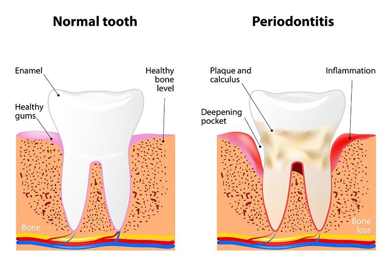 Vorsorge und Behandlung von Parodontitis und Gingivitis: Dr. L. Recoder Baar