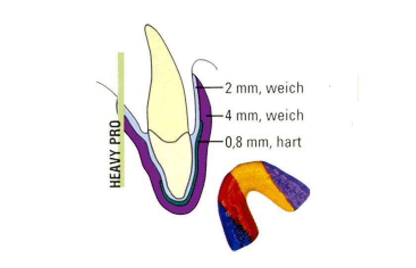 Optimalen Zahn-Schutz beim Sport bieten speziell im Labor angefertigte Schutzschienen