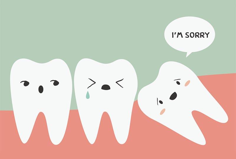 Schonende und angstfreie Weisheitszahnentfernung: Zahnarzt Recoder Baar