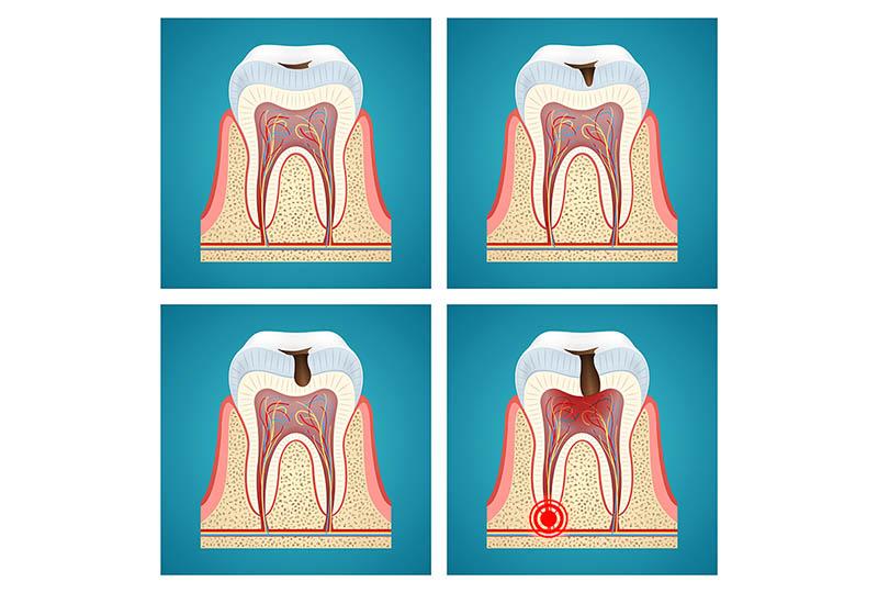 Schonende Wurzelkanalbehandlung. Zahnarztpraxis Baar Dr. Recoder