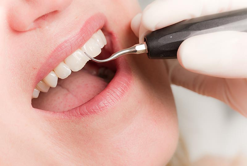 Bei einer Professionellen Zahnreinigung werden Zähne und Mundschleimhäute eingehend untersucht