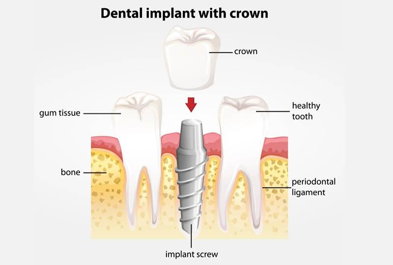 Das Implantat besteht aus einer hoch belastbaren Titanschraube, einem Implantatpfosten und der Zahnkrone