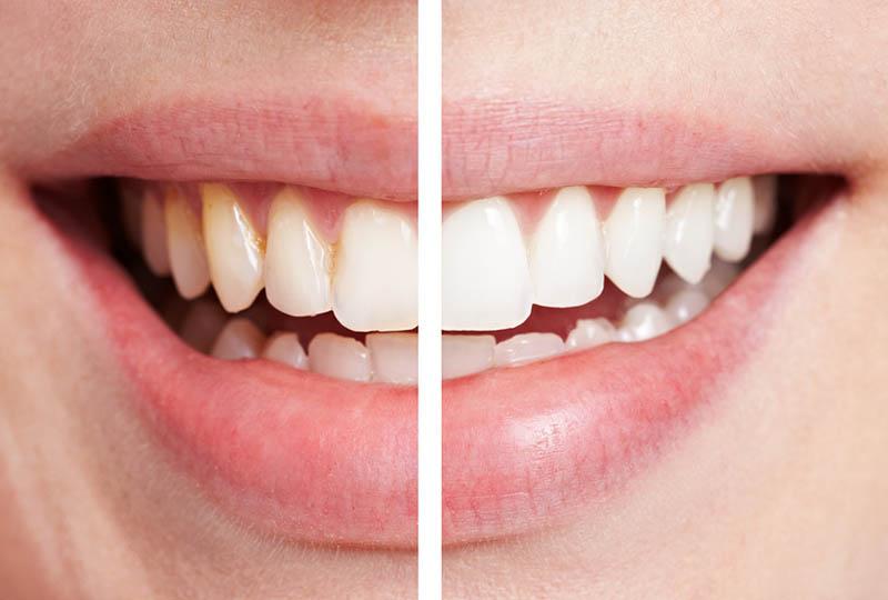 In-office Bleaching, Home-Bleaching und internes Bleaching für strahlend weisse Zähne