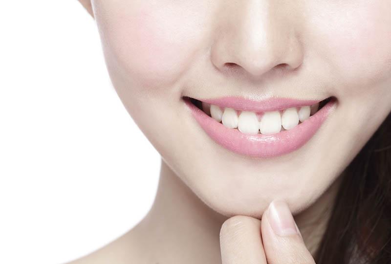 Komposit bietet optisch attraktive Füllungen auch an den vorderen Zähnen